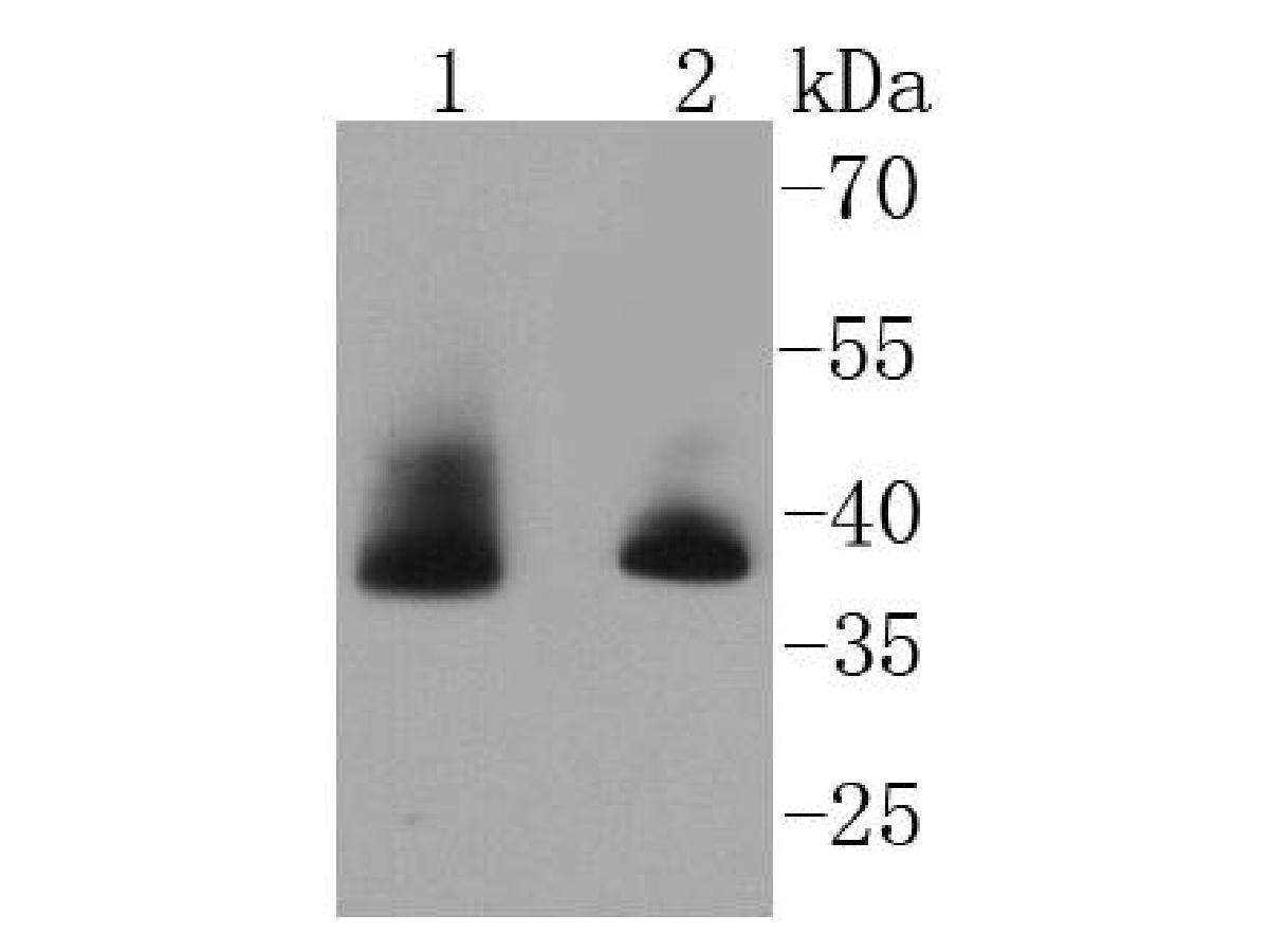 Western blot analysis of Aurora B on different lysates using anti-Aurora B antibody at 1/1,000 dilution.<br /> Positive control: <br /> Lane 1: Hela <br /> Lane 2: MCF-7
