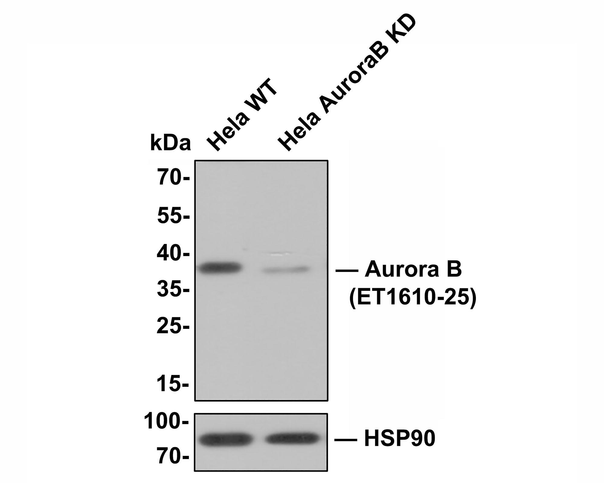 Immunohistochemical analysis of paraffin-embedded human tonsil tissue using anti-Aurora B antibody. Counter stained with hematoxylin.