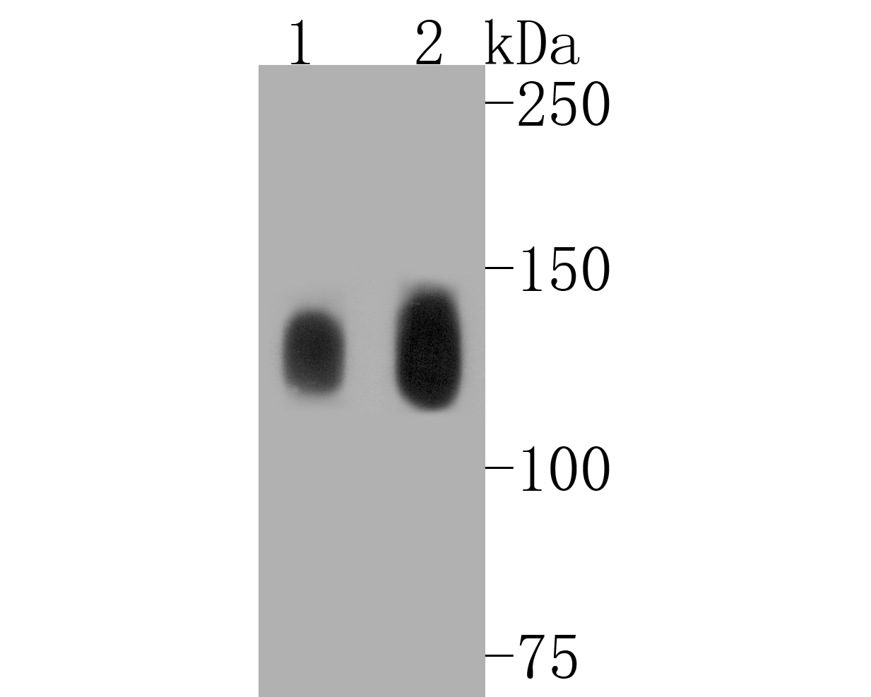 Western blot analysis of Phospho-TrkB(Y817) on different lysates. Proteins were transferred to a PVDF membrane and blocked with 5% BSA in PBS for 1 hour at room temperature. The primary antibody (ET1610-35, 1/500) was used in 5% BSA at room temperature for 2 hours. Goat Anti-Rabbit IgG - HRP Secondary Antibody (HA1001) at 1:5,000 dilution was used for 1 hour at room temperature.<br /> Positive control: <br /> Lane 1: mouse brain tissue lysate<br /> Lane 2: rat brain tissue lysate