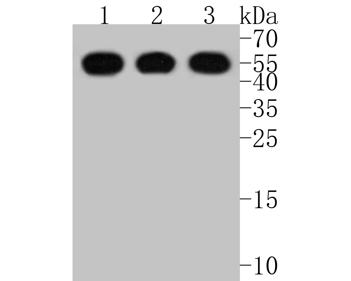 Western blot analysis of hnRNP K on different lysates. Proteins were transferred to a PVDF membrane and blocked with 5% BSA in PBS for 1 hour at room temperature. The primary antibody (ET1610-38, 1/500) was used in 5% BSA at room temperature for 2 hours. Goat Anti-Rabbit IgG - HRP Secondary Antibody (HA1001) at 1:5,000 dilution was used for 1 hour at room temperature.<br />  Positive control: <br />  Lane 1: Jurkat cell lysate<br />  Lane 2: Hela cell lysate<br />  Lane 3: NIH/3T3 cell lysate