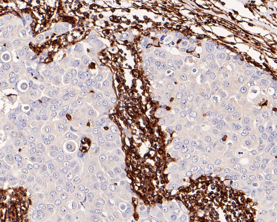 Flow cytometric analysis of Vimentin was done on Hela cells. The cells were fixed, permeabilized and stained with the primary antibody (ET1610-39, 1/50) (red). After incubation of the primary antibody at room temperature for an hour, the cells were stained with a Alexa Fluor 488-conjugated Goat anti-Rabbit IgG Secondary antibody at 1/1000 dilution for 30 minutes.Unlabelled sample was used as a control (cells without incubation with primary antibody; black).