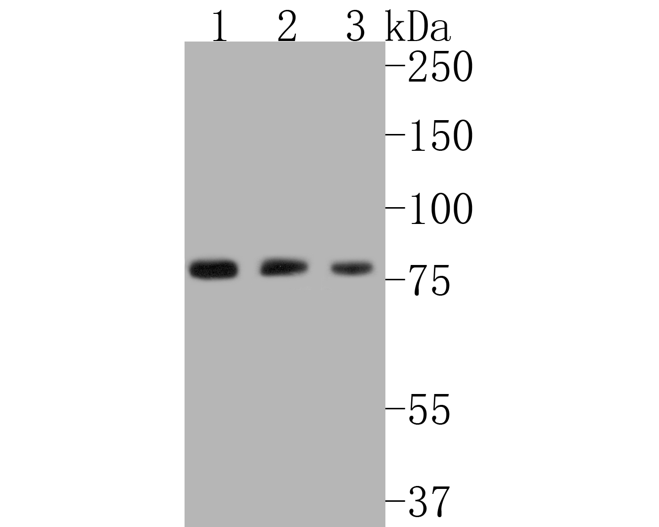 Western blot analysis of Radixin on different lysates. Proteins were transferred to a PVDF membrane and blocked with 5% BSA in PBS for 1 hour at room temperature. The primary antibody (ET1610-41, 1/500) was used in 5% BSA at room temperature for 2 hours. Goat Anti-Rabbit IgG - HRP Secondary Antibody (HA1001) at 1:5,000 dilution was used for 1 hour at room temperature.<br />  Positive control: <br />  Lane 1: Hela cell lysate<br />  Lane 2: HepG2 cell lysate<br />  Lane 3: A431 cell lysate