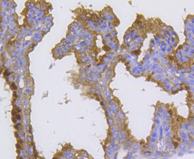 Immunohistochemical analysis of paraffin-embedded mouse placenta tissue using anti-Radixin antibody. The section was pre-treated using heat mediated antigen retrieval with Tris-EDTA buffer (pH 8.0-8.4) for 20 minutes.The tissues were blocked in 5% BSA for 30 minutes at room temperature, washed with ddH2O and PBS, and then probed with the primary antibody (ET1610-41, 1/50) for 30 minutes at room temperature. The detection was performed using an HRP conjugated compact polymer system. DAB was used as the chromogen. Tissues were counterstained with hematoxylin and mounted with DPX.