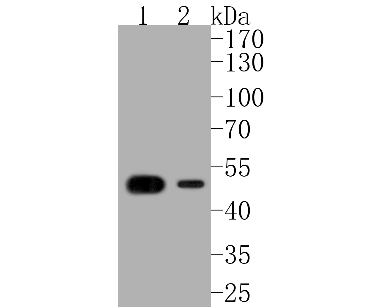 Western blot analysis of Cytokeratin 14 on different lysates. Proteins were transferred to a PVDF membrane and blocked with 5% BSA in PBS for 1 hour at room temperature. The primary antibody (ET1610-42, 1/500) was used in 5% BSA at room temperature for 2 hours. Goat Anti-Rabbit IgG - HRP Secondary Antibody (HA1001) at 1:5,000 dilution was used for 1 hour at room temperature.<br /> Positive control: <br /> Lane 1: human skin tissue lysate<br /> Lane 2: A431 cell lysate