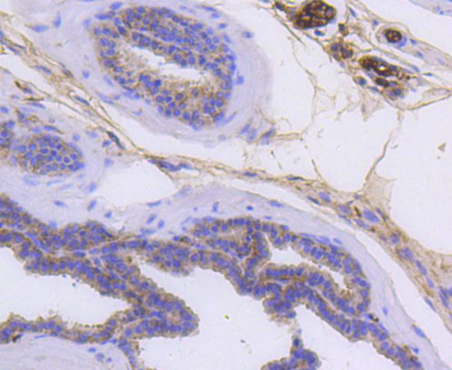Immunohistochemical analysis of paraffin-embedded mouse prostate tissue using anti-Cytokeratin 14 antibody. The section was pre-treated using heat mediated antigen retrieval with Tris-EDTA buffer (pH 8.0-8.4) for 20 minutes.The tissues were blocked in 5% BSA for 30 minutes at room temperature, washed with ddH2O and PBS, and then probed with the primary antibody (ET1610-42, 1/50) for 30 minutes at room temperature. The detection was performed using an HRP conjugated compact polymer system. DAB was used as the chromogen. Tissues were counterstained with hematoxylin and mounted with DPX.