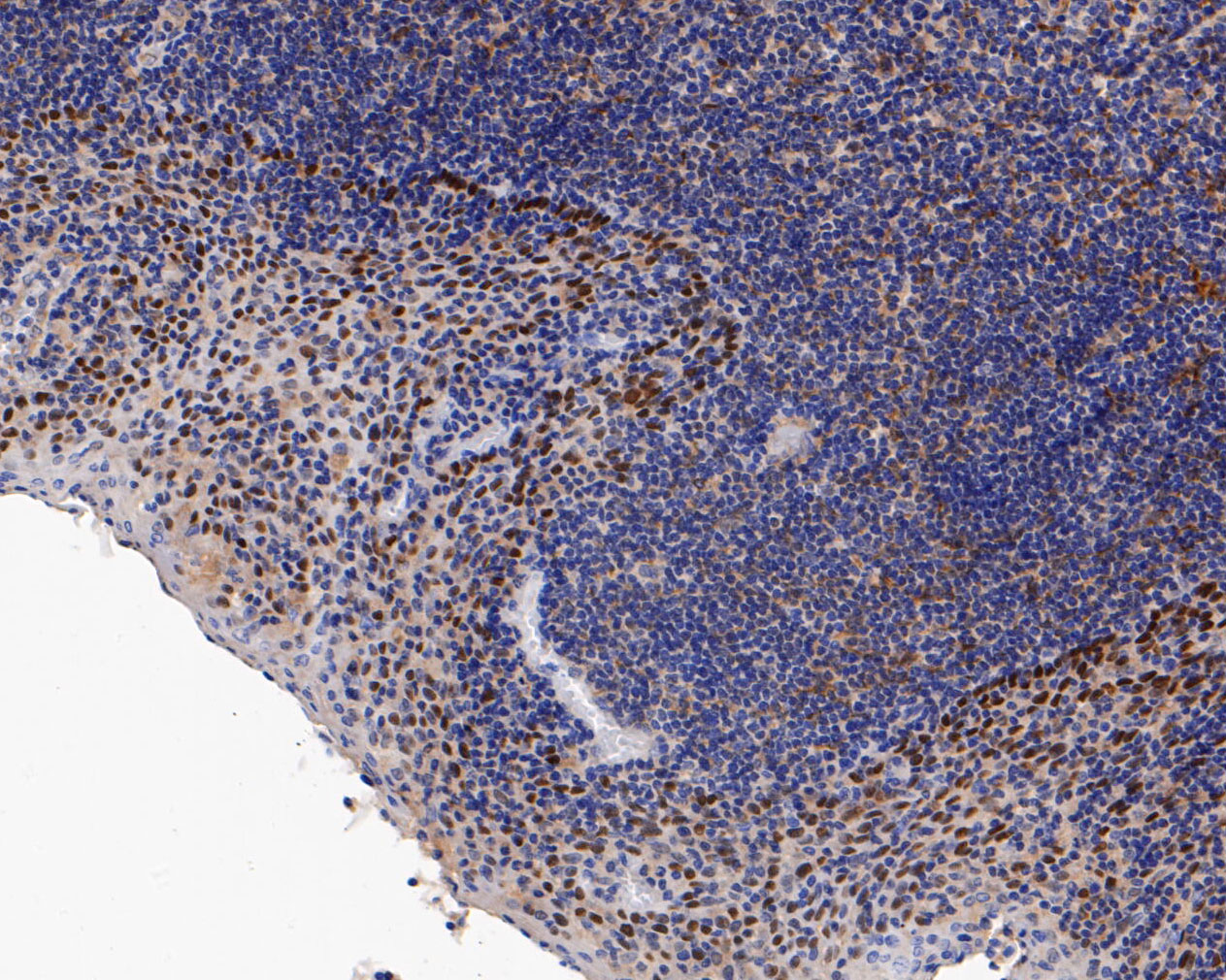Immunohistochemical analysis of paraffin-embedded human tonsil tissue using anti-p63 antibody. The section was pre-treated using heat mediated antigen retrieval with sodium citrate buffer (pH 6.0) for 20 minutes. The tissues were blocked in 5% BSA for 30 minutes at room temperature, washed with ddH2O and PBS, and then probed with the primary antibody (ET1610-44, 1/50) for 30 minutes at room temperature. The detection was performed using an HRP conjugated compact polymer system. DAB was used as the chromogen. Tissues were counterstained with hematoxylin and mounted with DPX.