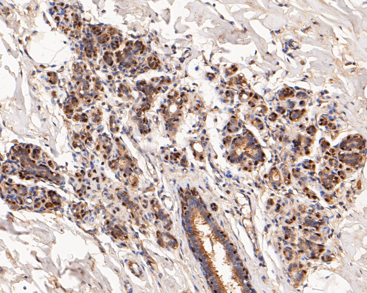 Immunohistochemical analysis of paraffin-embedded human breast tissue using anti-p63 antibody. The section was pre-treated using heat mediated antigen retrieval with sodium citrate buffer (pH 6.0) for 20 minutes. The tissues were blocked in 5% BSA for 30 minutes at room temperature, washed with ddH2O and PBS, and then probed with the primary antibody (ET1610-44, 1/50) for 30 minutes at room temperature. The detection was performed using an HRP conjugated compact polymer system. DAB was used as the chromogen. Tissues were counterstained with hematoxylin and mounted with DPX.