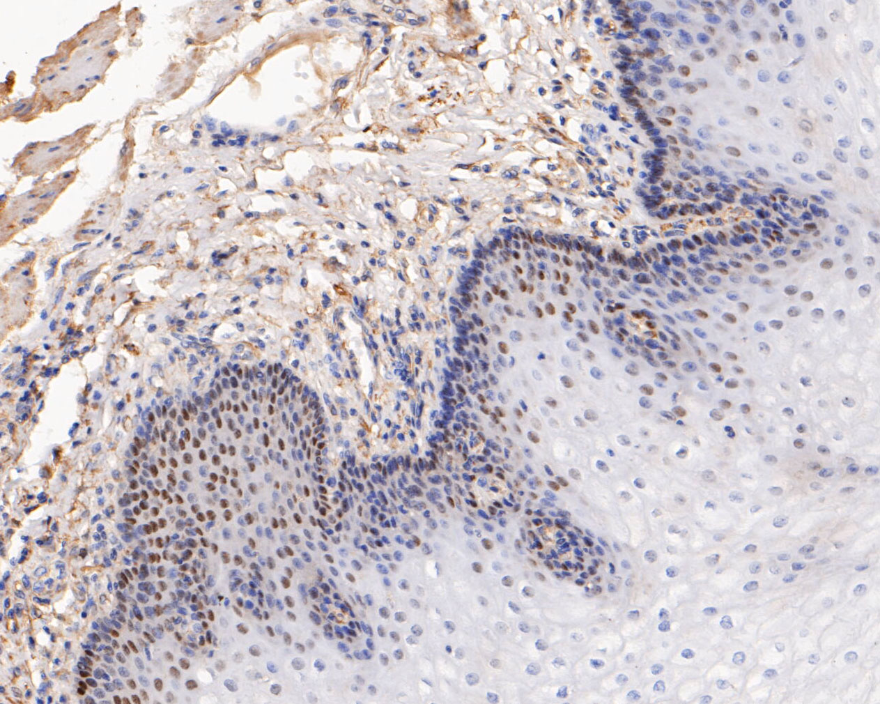 Immunohistochemical analysis of paraffin-embedded human esophagus tissue using anti-p63 antibody. The section was pre-treated using heat mediated antigen retrieval with sodium citrate buffer (pH 6.0) for 20 minutes. The tissues were blocked in 5% BSA for 30 minutes at room temperature, washed with ddH2O and PBS, and then probed with the primary antibody (ET1610-44, 1/50) for 30 minutes at room temperature. The detection was performed using an HRP conjugated compact polymer system. DAB was used as the chromogen. Tissues were counterstained with hematoxylin and mounted with DPX.