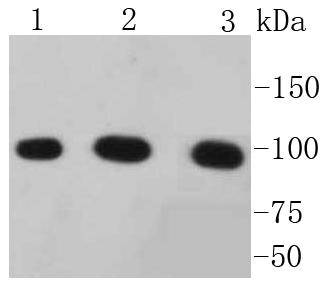 Western blot analysis of alpha 1 Catenin on different lysates using anti-alpha 1 Catenin antibody at 1/1,000 dilution.<br /> Positive control: <br /> Lane 1: Hela <br /> Lane 2: HepG2 <br /> Lane 3: A431