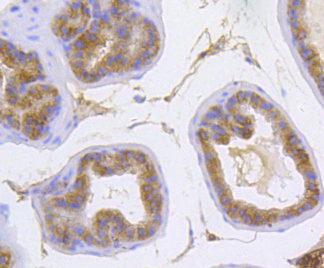 Immunohistochemical analysis of paraffin-embedded mouse prostate tissue using anti-alpha 1 Catenin antibody. Counter stained with hematoxylin.