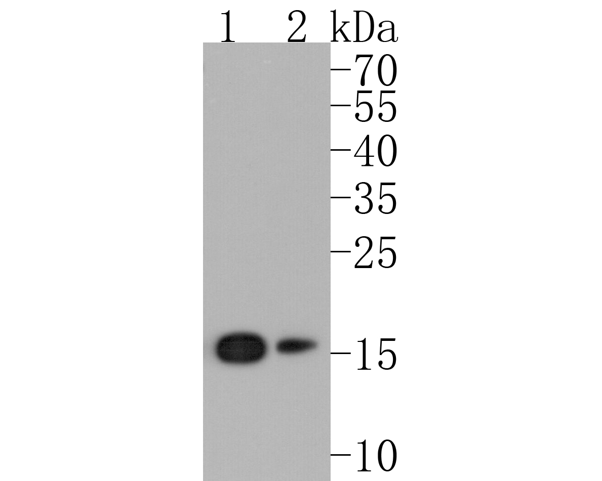 Western blot analysis of eIF5A on different lysates. Proteins were transferred to a PVDF membrane and blocked with 5% BSA in PBS for 1 hour at room temperature. The primary antibody (ET1610-49, 1/500) was used in 5% BSA at room temperature for 2 hours. Goat Anti-Rabbit IgG - HRP Secondary Antibody (HA1001) at 1:5,000 dilution was used for 1 hour at room temperature.<br /> Positive control: <br /> Lane 1: Jurkat cell lysate<br /> Lane 2: MCF-7 cell lysate