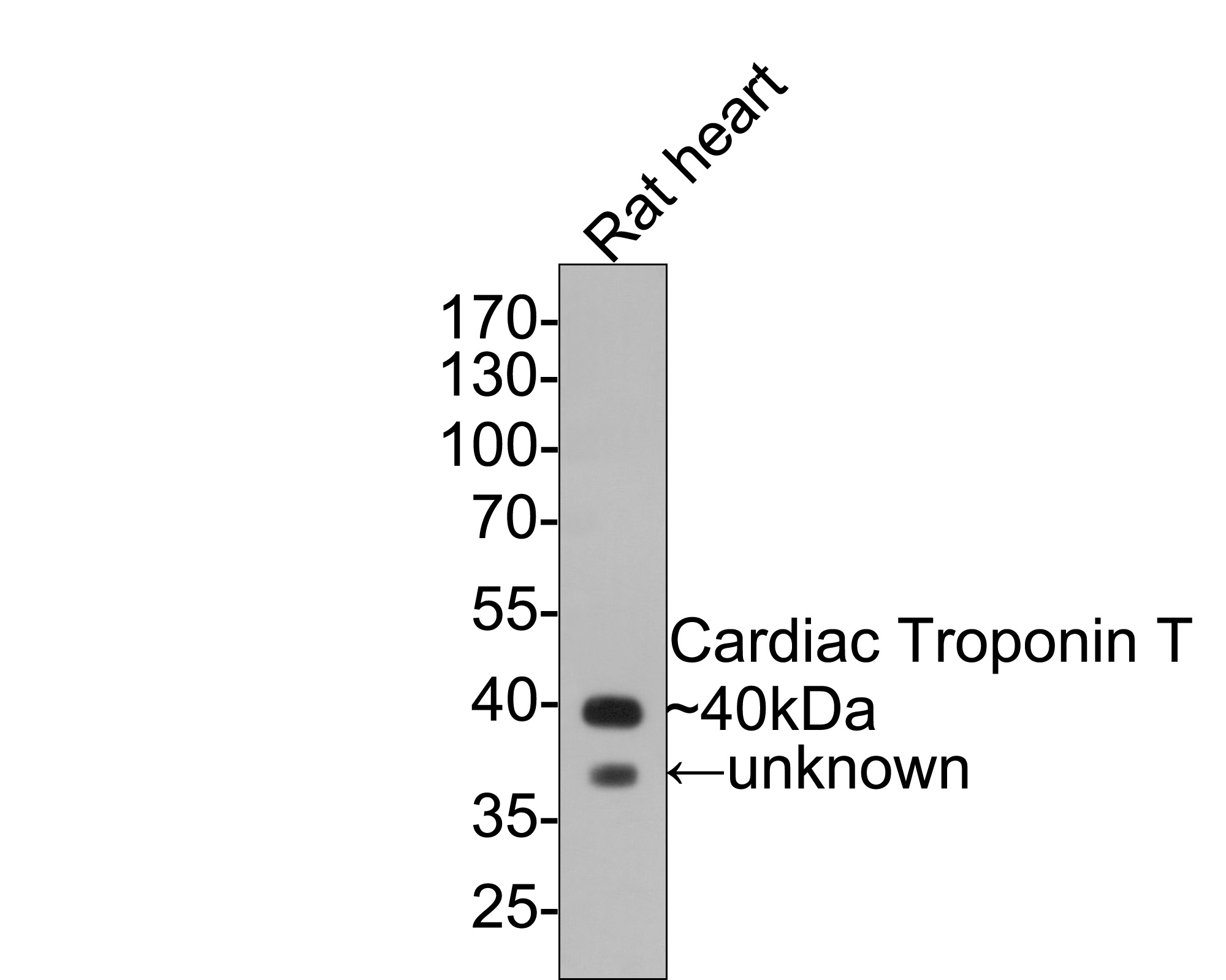 Immunohistochemical analysis of paraffin-embedded mouse heart tissue using anti-Cardiac Troponin T antibody. The section was pre-treated using heat mediated antigen retrieval with Tris-EDTA buffer (pH 8.0-8.4) for 20 minutes.The tissues were blocked in 5% BSA for 30 minutes at room temperature, washed with ddH2O and PBS, and then probed with the primary antibody (ET1610-51, 1/50) for 30 minutes at room temperature. The detection was performed using an HRP conjugated compact polymer system. DAB was used as the chromogen. Tissues were counterstained with hematoxylin and mounted with DPX.
