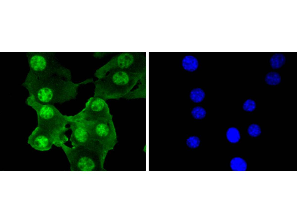 ICC staining PRP19 in B16-F1 cells (green). The nuclear counter stain is DAPI (blue). Cells were fixed in paraformaldehyde, permeabilised with 0.25% Triton X100/PBS.