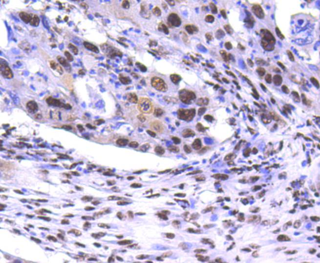 Immunohistochemical analysis of paraffin-embedded human lung cancer tissue using anti-PRP19 antibody. Counter stained with hematoxylin.