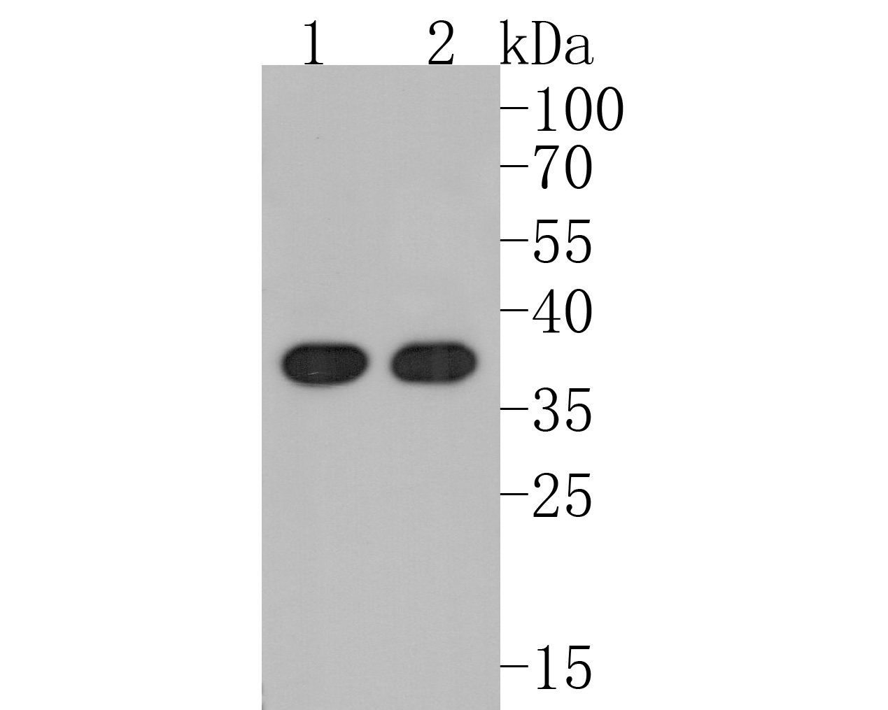 Western blot analysis of Annexin A10 on different lysates. Proteins were transferred to a PVDF membrane and blocked with 5% BSA in PBS for 1 hour at room temperature. The primary antibody (ET1610-57, 1/500) was used in 5% BSA at room temperature for 2 hours. Goat Anti-Rabbit IgG - HRP Secondary Antibody (HA1001) at 1:5,000 dilution was used for 1 hour at room temperature.<br /> Positive control: <br /> Lane 1: Hela cell lysate<br /> Lane 2: Jurkat cell lysate