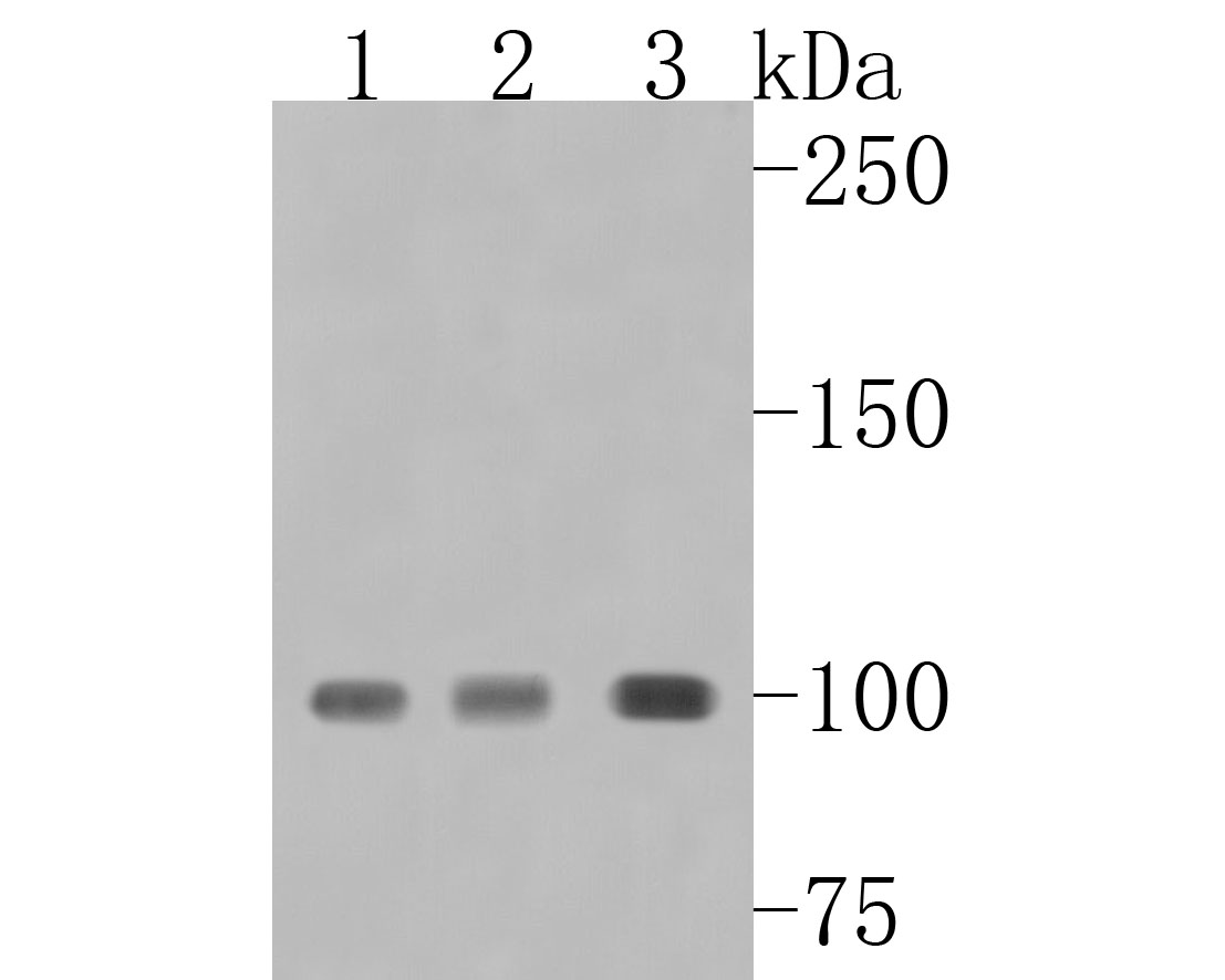 Western blot analysis of TOP1 on different lysates using anti-TOP1 antibody at 1/1,000 dilution.<br /> Positive control: <br /> Lane 1: HepG2 <br /> Lane 2: Jurkat <br /> Lane 3: MCF-7
