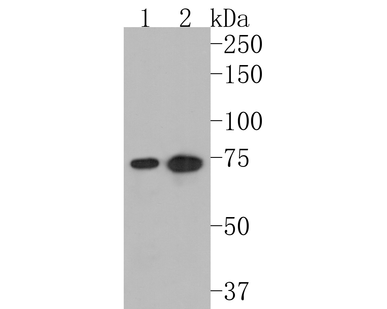Western blot analysis of Moesin on different lysates using anti-Moesin antibody at 1/1,000 dilution.<br />  Positive control: <br />   Lane 1: Raji <br />   Lane 2: SH-SY-5Y