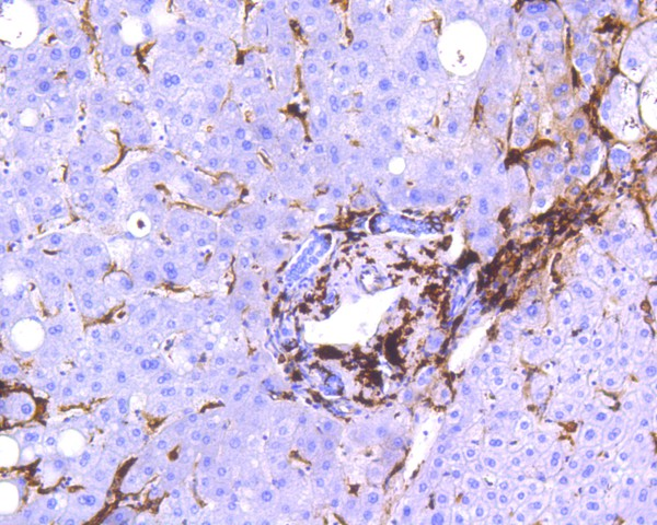 Immunohistochemical analysis of paraffin-embedded human liver tissue using anti-HLA-DR antibody. The section was pre-treated using heat mediated antigen retrieval with Tris-EDTA buffer (pH 8.0-8.4) for 20 minutes.The tissues were blocked in 5% BSA for 30 minutes at room temperature, washed with ddH2O and PBS, and then probed with the primary antibody (ET1610-66, 1/200) for 30 minutes at room temperature. The detection was performed using an HRP conjugated compact polymer system. DAB was used as the chromogen. Tissues were counterstained with hematoxylin and mounted with DPX.