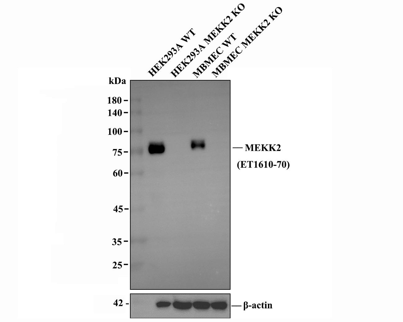 Western blot analysis of MEKK2 on different lysates using anti-MEKK2 antibody at 1/1,000 dilution.<br /> Positive control:   <br /> Lane 1: HepG2            <br /> Lane 2: Rat brain <br /> Lane 3: SW480