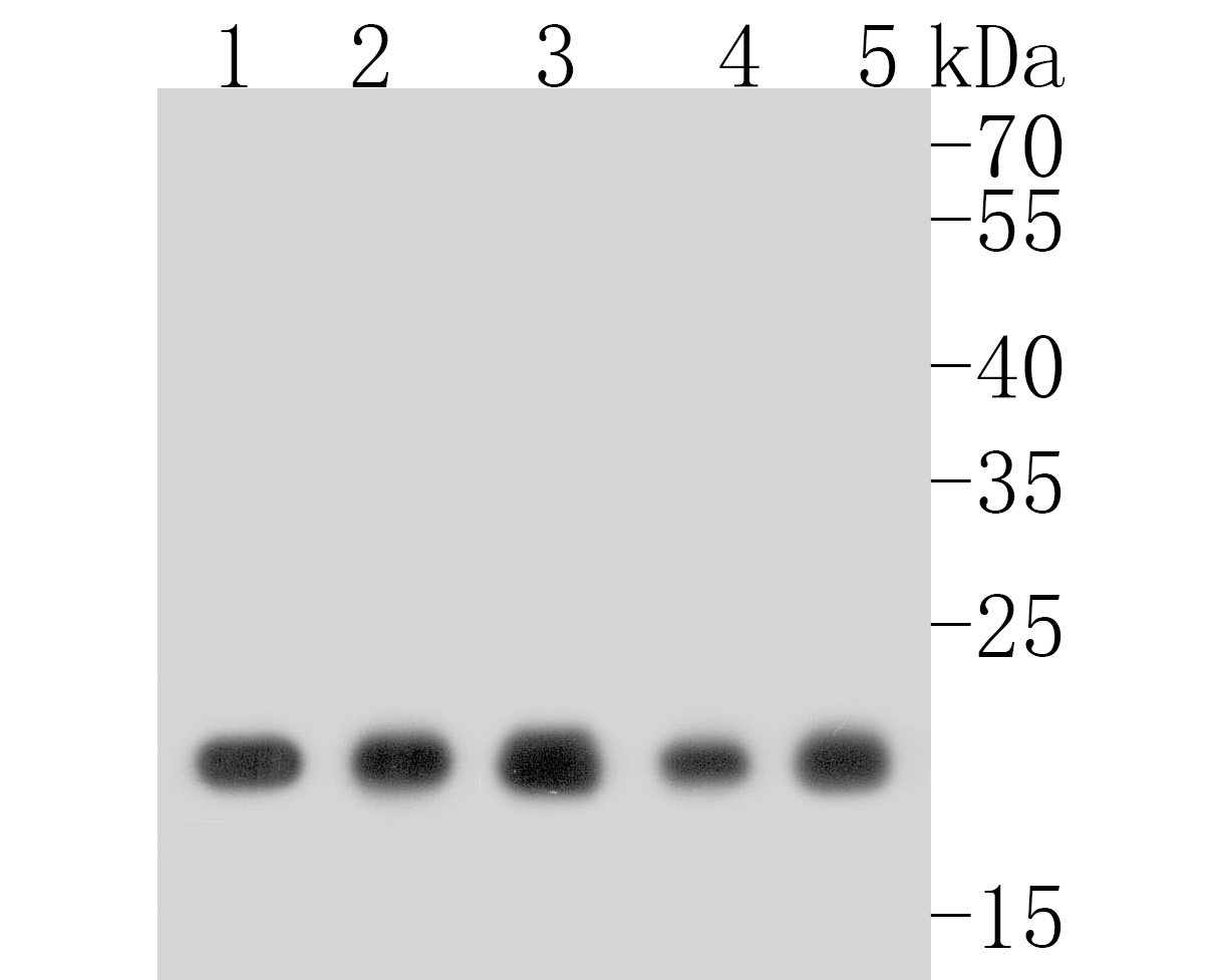 Western blot analysis of MTCO2 on different lysates. Proteins were transferred to a PVDF membrane and blocked with 5% BSA in PBS for 1 hour at room temperature. The primary antibody (ET1610-72, 1/500) was used in 5% BSA at room temperature for 2 hours. Goat Anti-Rabbit IgG - HRP Secondary Antibody (HA1001) at 1:5,000 dilution was used for 1 hour at room temperature.<br />  Positive control: <br />  Lane 1: MCF-7 cell lysate<br />  Lane 2: THP-1 cell lysate<br />  Lane 3: Hela cell lysate<br />  Lane 4: human lung tissue lysate<br />  Lane 5: human placenta tissue lysate