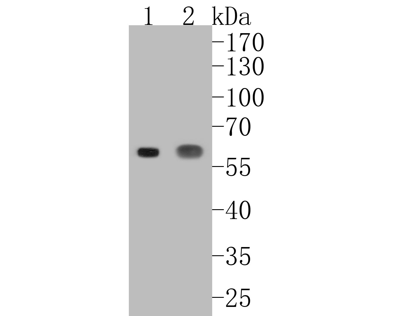 Western blot analysis of CD14 on different lysates. Proteins were transferred to a PVDF membrane and blocked with 5% BSA in PBS for 1 hour at room temperature. The primary antibody (ET1610-85, 1/500) was used in 5% BSA at room temperature for 2 hours. Goat Anti-Rabbit IgG - HRP Secondary Antibody (HA1001) at 1:5,000 dilution was used for 1 hour at room temperature.<br />  Positive control: <br />  Lane 1: human liver tissue lysate<br />  Lane 2: SW480 cell lysate