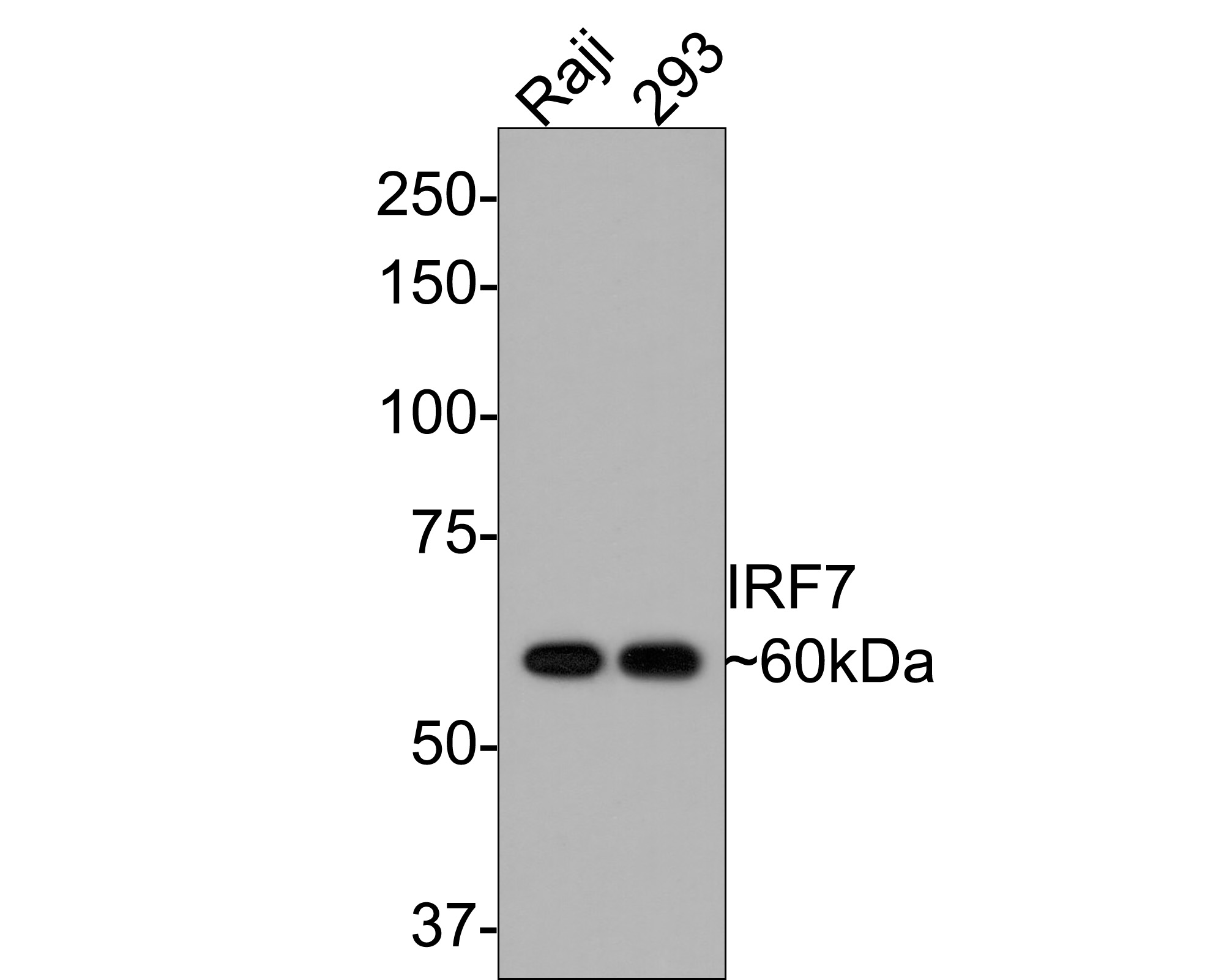 Western blot analysis of IRF7 on different lysates. Proteins were transferred to a PVDF membrane and blocked with 5% BSA in PBS for 1 hour at room temperature. The primary antibody (ET1610-89, 1/500) was used in 5% BSA at room temperature for 2 hours. Goat Anti-Rabbit IgG - HRP Secondary Antibody (HA1001) at 1:5,000 dilution was used for 1 hour at room temperature.<br />  Positive control: <br />  Lane 1: Jurkat cell lysate<br />  Lane 2: Raji cell lysate<br />  Lane 2: 293 cell lysate