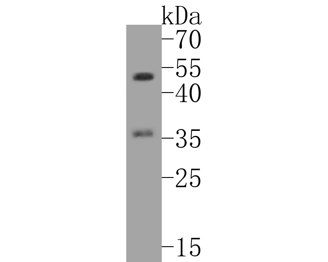 Western blot analysis of C/EBP Beta on PC-12 cell lysates. Proteins were transferred to a PVDF membrane and blocked with 5% BSA in PBS for 1 hour at room temperature. The primary antibody (ET1610-9, 1/500) was used in 5% BSA at room temperature for 2 hours. Goat Anti-Rabbit IgG - HRP Secondary Antibody (HA1001) at 1:5,000 dilution was used for 1 hour at room temperature.