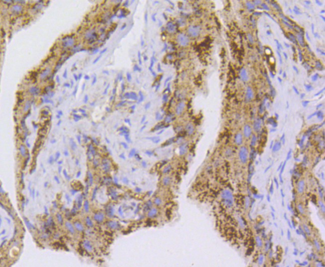 Immunohistochemical analysis of paraffin-embedded mouse bladder tissue using anti-NLRP3 antibody. The section was pre-treated using heat mediated antigen retrieval with Tris-EDTA buffer (pH 8.0-8.4) for 20 minutes.The tissues were blocked in 5% BSA for 30 minutes at room temperature, washed with ddH2O and PBS, and then probed with the primary antibody (ET1610-93, 1/50) for 30 minutes at room temperature. The detection was performed using an HRP conjugated compact polymer system. DAB was used as the chromogen. Tissues were counterstained with hematoxylin and mounted with DPX.