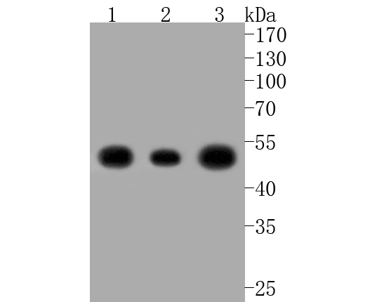 Western blot analysis of NSE on different lysates. Proteins were transferred to a PVDF membrane and blocked with 5% BSA in PBS for 1 hour at room temperature. The primary antibody (ET1610-96, 1/500) was used in 5% BSA at room temperature for 2 hours. Goat Anti-Rabbit IgG - HRP Secondary Antibody (HA1001) at 1:5,000 dilution was used for 1 hour at room temperature.<br /> Positive control: <br /> Lane 1: HepG2 cell lysate<br /> Lane 2: Hela cell lysate<br /> Lane 3: 293 cell lysate