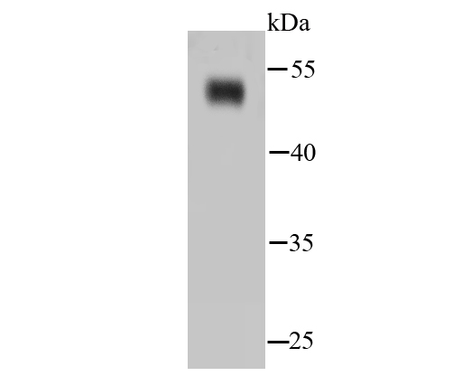 Western blot analysis of NSE on hybrid fish<br /> (crucian-carp) brain tissue lysates. Proteins were transferred to a PVDF membrane and blocked with 5% BSA in PBS for 1 hour at room temperature. The primary antibody (ET1610-96, 1/500) was used in 5% BSA at room temperature for 2 hours. Goat Anti-Rabbit IgG - HRP Secondary Antibody (HA1001) at 1:5,000 dilution was used for 1 hour at room temperature.