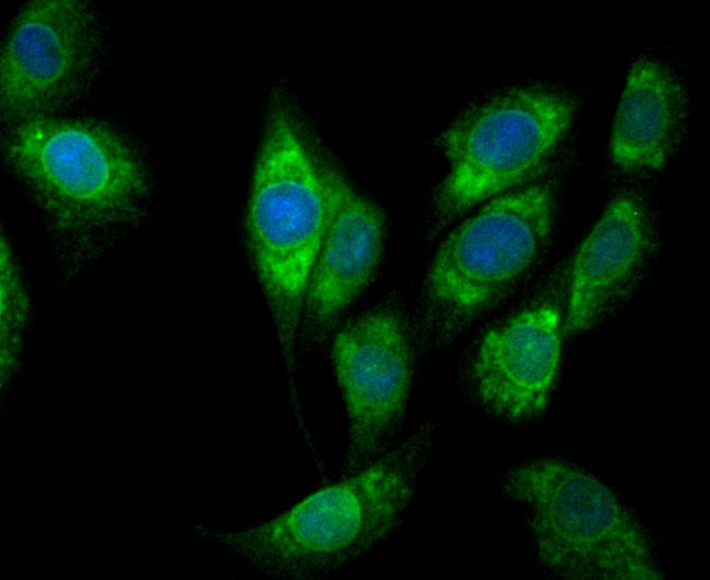 Immunohistochemical analysis of paraffin-embedded mouse skin tissue using anti-COX1/Cyclooxygenase 1 antibody. The section was pre-treated using heat mediated antigen retrieval with Tris-EDTA buffer (pH 8.0-8.4) for 20 minutes.The tissues were blocked in 5% BSA for 30 minutes at room temperature, washed with ddH2O and PBS, and then probed with the primary antibody (ET1610-98, 1/50) for 30 minutes at room temperature. The detection was performed using an HRP conjugated compact polymer system. DAB was used as the chromogen. Tissues were counterstained with hematoxylin and mounted with DPX.