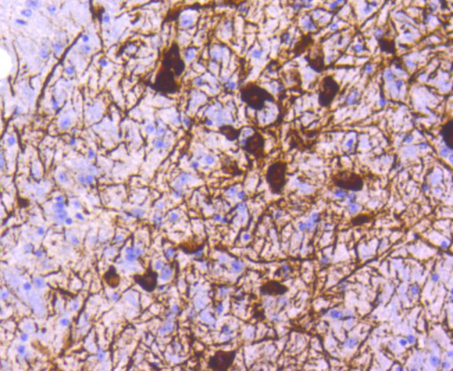 Immunohistochemical analysis of paraffin-embedded mouse brain tissue using anti-Tyrosine Hydroxylase antibody. The section was pre-treated using heat mediated antigen retrieval with Tris-EDTA buffer (pH 8.0-8.4) for 20 minutes.The tissues were blocked in 5% BSA for 30 minutes at room temperature, washed with ddH2O and PBS, and then probed with the primary antibody (ET1611-12, 1/50) for 30 minutes at room temperature. The detection was performed using an HRP conjugated compact polymer system. DAB was used as the chromogen. Tissues were counterstained with hematoxylin and mounted with DPX.