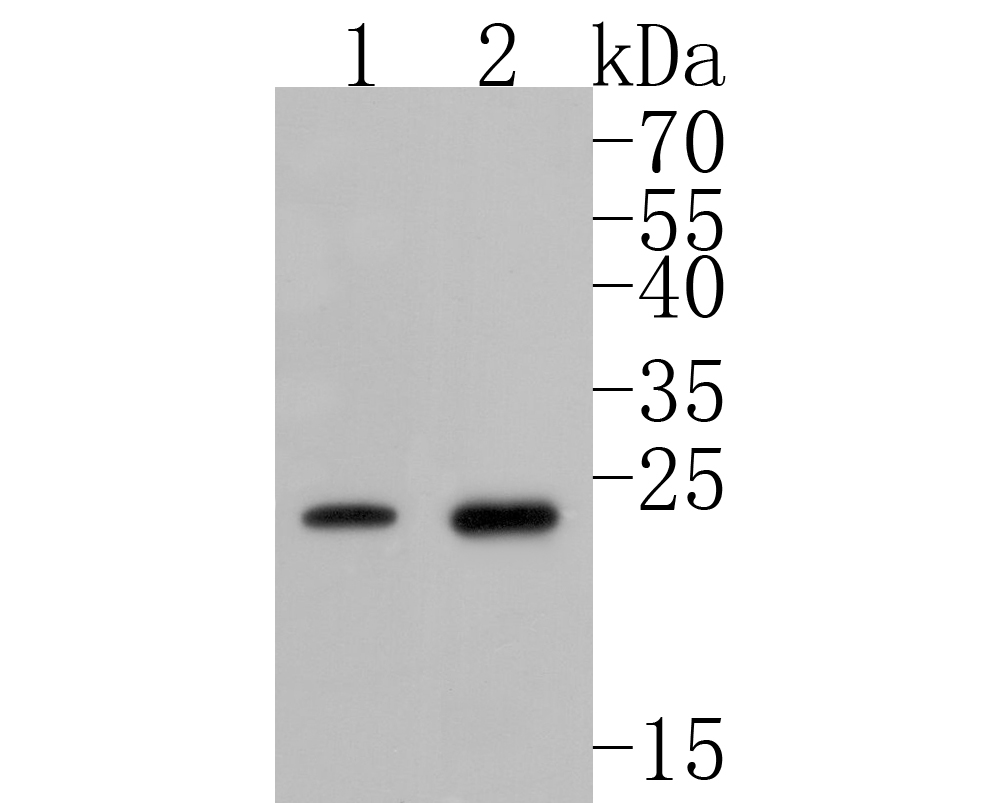 Western blot analysis of Phospho-Hsp27(S82) on different lysates. Proteins were transferred to a PVDF membrane and blocked with 5% BSA in PBS for 1 hour at room temperature. The primary antibody (ET1611-16, 1/500) was used in 5% BSA at room temperature for 2 hours. Goat Anti-Rabbit IgG - HRP Secondary Antibody (HA1001) at 1:5,000 dilution was used for 1 hour at room temperature.<br /> Positive control: <br /> Lane 1: human skeletal muscle tissue lysate<br /> Lane 2: MCF-7 cell lysate