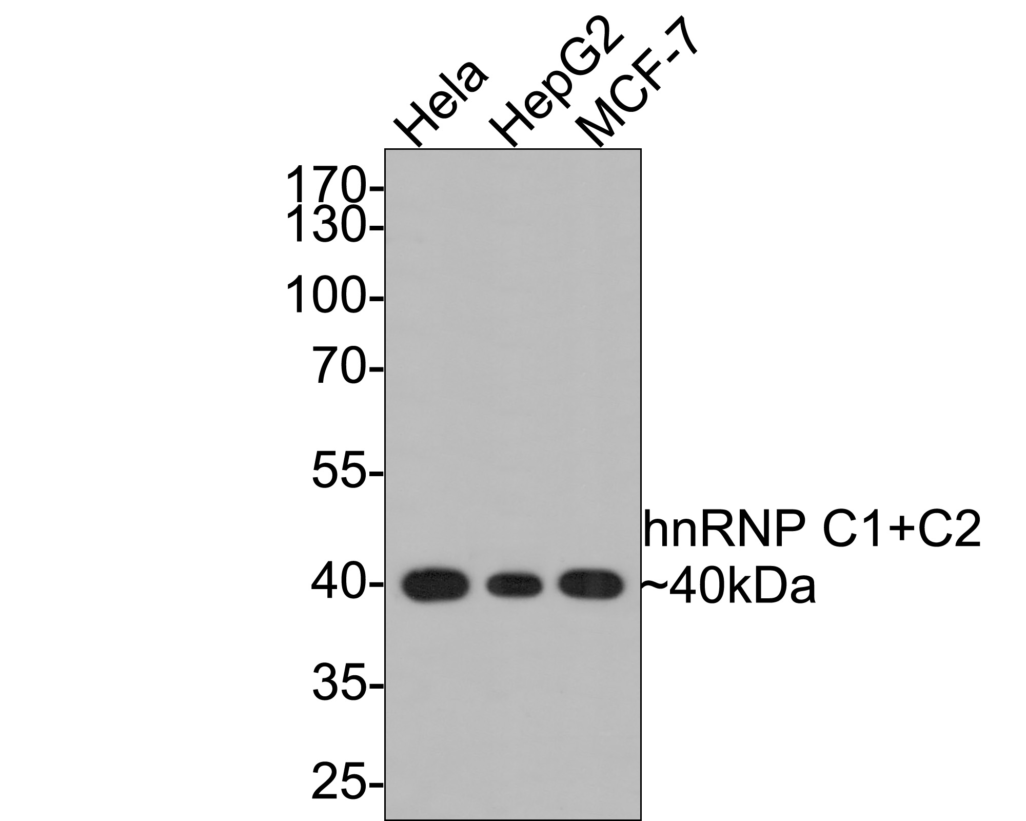 Western blot analysis of hnRNP C1+C2 on different lysates using anti-hnRNP C1+C2 antibody at 1/1,000 dilution.<br /> Positive control: <br /> Lane 1: Hela <br /> Lane 2: MCF-7 <br /> Lane 3: HepG2