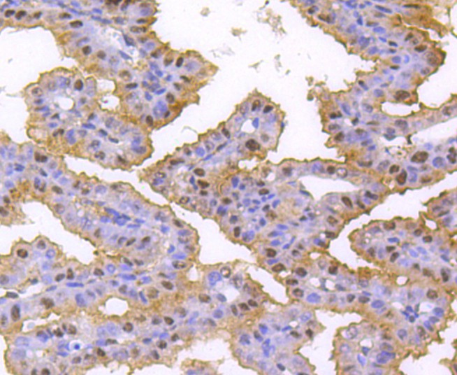 Immunohistochemical analysis of paraffin-embedded mouse placenta tissue using anti-hnRNP C1+C2 antibody. Counter stained with hematoxylin.