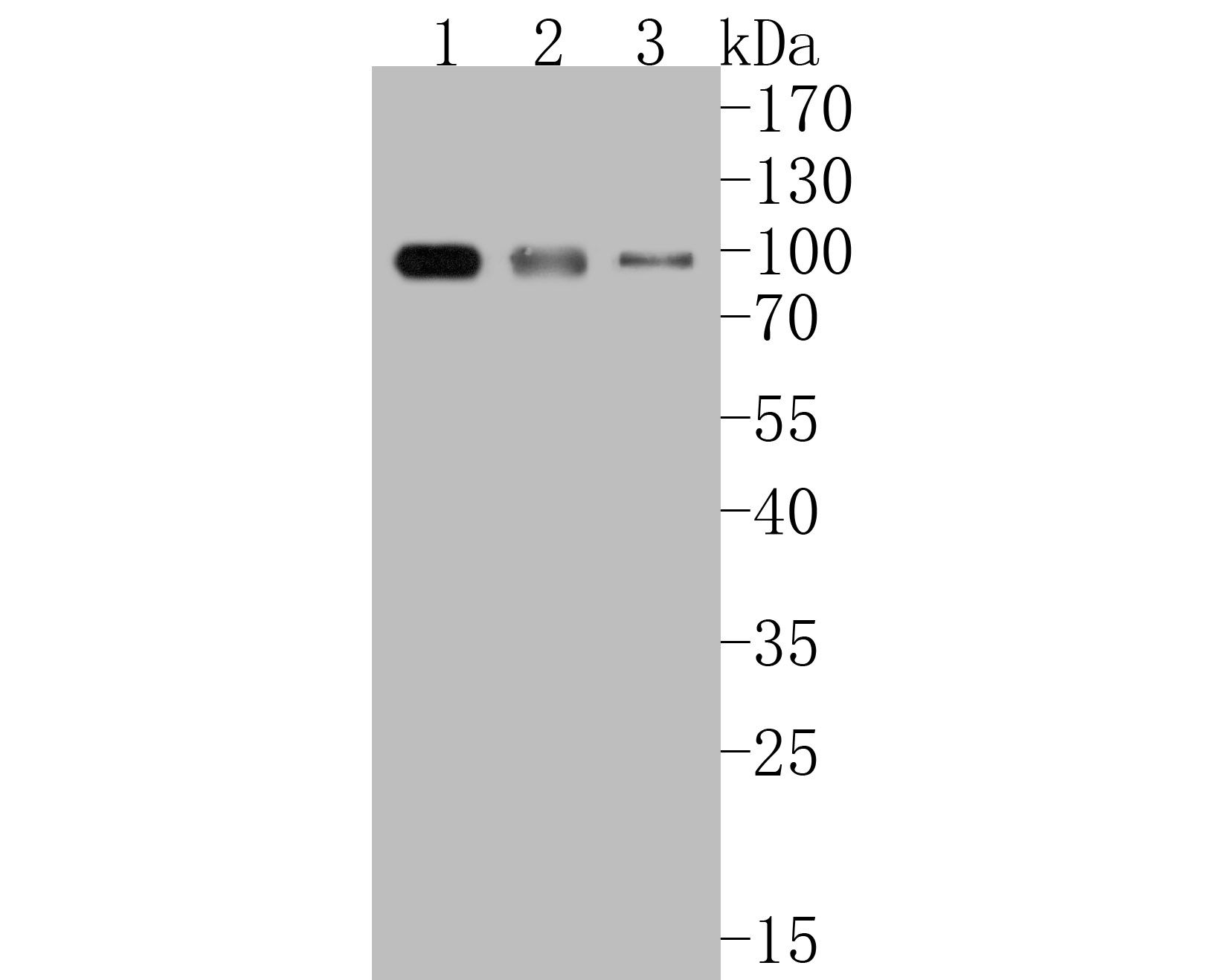 Western blot analysis of IKK alpha + IKK beta on different lysates. Proteins were transferred to a PVDF membrane and blocked with 5% BSA in PBS for 1 hour at room temperature. The primary antibody (ET1611-23, 1/500) was used in 5% BSA at room temperature for 2 hours. Goat Anti-Rabbit IgG - HRP Secondary Antibody (HA1001) at 1:5,000 dilution was used for 1 hour at room temperature.<br />  Positive control: <br />  Lane 1: Hela cell lysate<br />  Lane 2: A431 cell lysate<br />  Lane 3: Daudi cell lysate