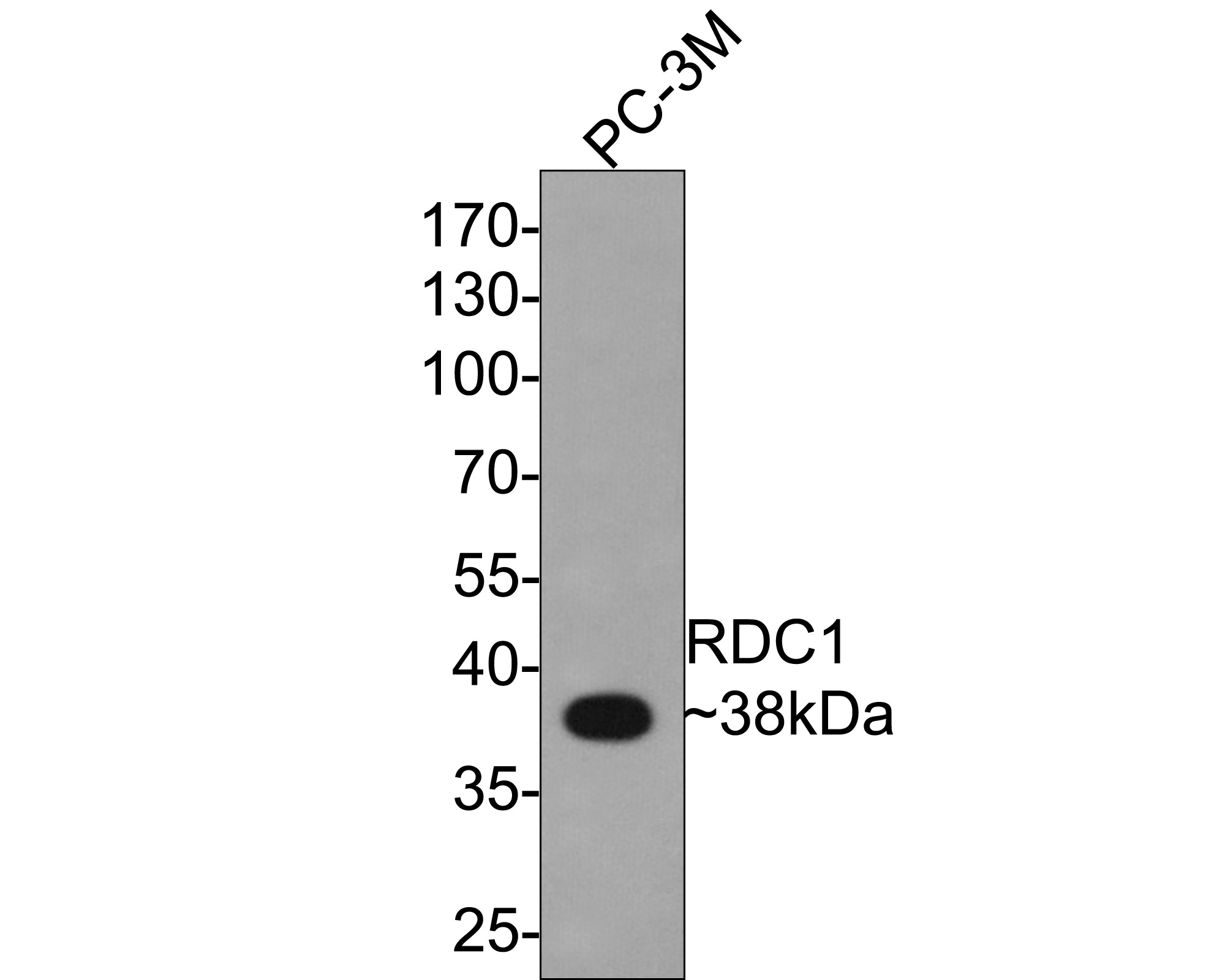 Western blot analysis of GPCR RDC1 on PC-3M cells lysates using anti-GPCR RDC1 antibody at 1/1,000 dilution.