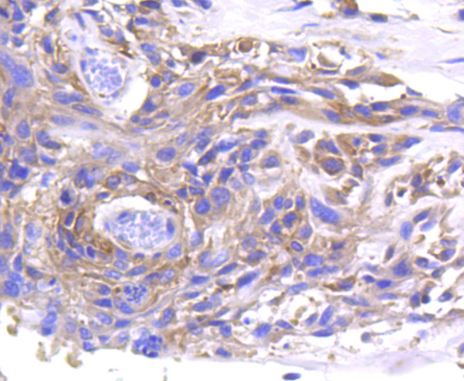 Immunohistochemical analysis of paraffin-embedded human breast carcinoma tissue using anti-MMP11 antibody. The section was pre-treated using heat mediated antigen retrieval with Tris-EDTA buffer (pH 8.0-8.4) for 20 minutes.The tissues were blocked in 5% BSA for 30 minutes at room temperature, washed with ddH2O and PBS, and then probed with the primary antibody (ET1611-33, 1/50) for 30 minutes at room temperature. The detection was performed using an HRP conjugated compact polymer system. DAB was used as the chromogen. Tissues were counterstained with hematoxylin and mounted with DPX.