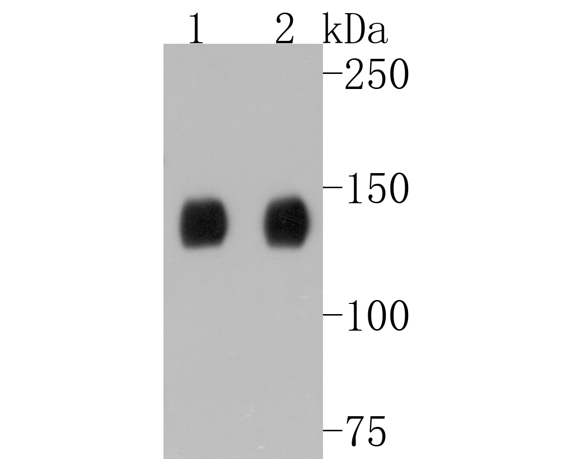 Western blot analysis of TACC3 on different lysates. Proteins were transferred to a PVDF membrane and blocked with 5% BSA in PBS for 1 hour at room temperature. The primary antibody (ET1611-34, 1/500) was used in 5% BSA at room temperature for 2 hours. Goat Anti-Rabbit IgG - HRP Secondary Antibody (HA1001) at 1:5,000 dilution was used for 1 hour at room temperature.<br /> Positive control: <br /> Lane 1: Hela cell lysate<br /> Lane 2: HT-29 cell lysate
