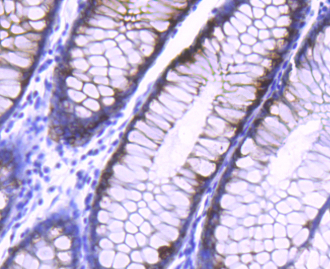 Immunohistochemical analysis of paraffin-embedded human colon tissue using anti-AGR2 antibody. The section was pre-treated using heat mediated antigen retrieval with Tris-EDTA buffer (pH 8.0-8.4) for 20 minutes.The tissues were blocked in 5% BSA for 30 minutes at room temperature, washed with ddH2O and PBS, and then probed with the primary antibody (ET1611-36, 1/50) for 30 minutes at room temperature. The detection was performed using an HRP conjugated compact polymer system. DAB was used as the chromogen. Tissues were counterstained with hematoxylin and mounted with DPX.