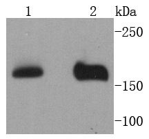 Western blot analysis of NSD3 on different lysates using anti-NSD3 antibody at 1/1,000 dilution.<br />  Positive control: <br />  Lane 1: MCF-7 <br />  Lane 2: 293T
