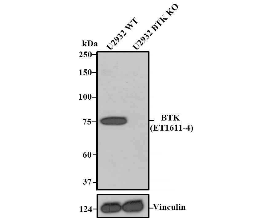 Western blot analysis of BTK on different lysates. Proteins were transferred to a PVDF membrane and blocked with 5% BSA in PBS for 1 hour at room temperature. The primary antibody (ET1611-4, 1/500) was used in 5% BSA at room temperature for 2 hours. Goat Anti-Rabbit IgG - HRP Secondary Antibody (HA1001) at 1:5,000 dilution was used for 1 hour at room temperature.<br /> Positive control: <br /> Lane 1: Daudi cell lysate<br /> Lane 2: Raji cell lysate<br /> Lane 3: U937 cell lysate