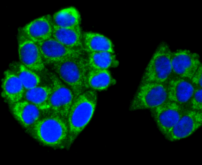 ICC staining of TNFAIP3 in HepG2 cells (green). Formalin fixed cells were permeabilized with 0.1% Triton X-100 in TBS for 10 minutes at room temperature and blocked with 1% Blocker BSA for 15 minutes at room temperature. Cells were probed with the primary antibody (ET1611-40, 1/50) for 1 hour at room temperature, washed with PBS. Alexa Fluor®488 Goat anti-Rabbit IgG was used as the secondary antibody at 1/1,000 dilution. The nuclear counter stain is DAPI (blue).