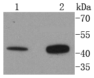 Western blot analysis of Angiotensin II Type 2 Receptor on different lysates. Proteins were transferred to a PVDF membrane and blocked with 5% BSA in PBS for 1 hour at room temperature. The primary antibody (ET1611-41, 1/500) was used in 5% BSA at room temperature for 2 hours. Goat Anti-Rabbit IgG - HRP Secondary Antibody (HA1001) at 1:5,000 dilution was used for 1 hour at room temperature.<br /> Positive control: <br /> Lane 1: 293T cell lysate<br /> Lane 2: Hela cell lysate
