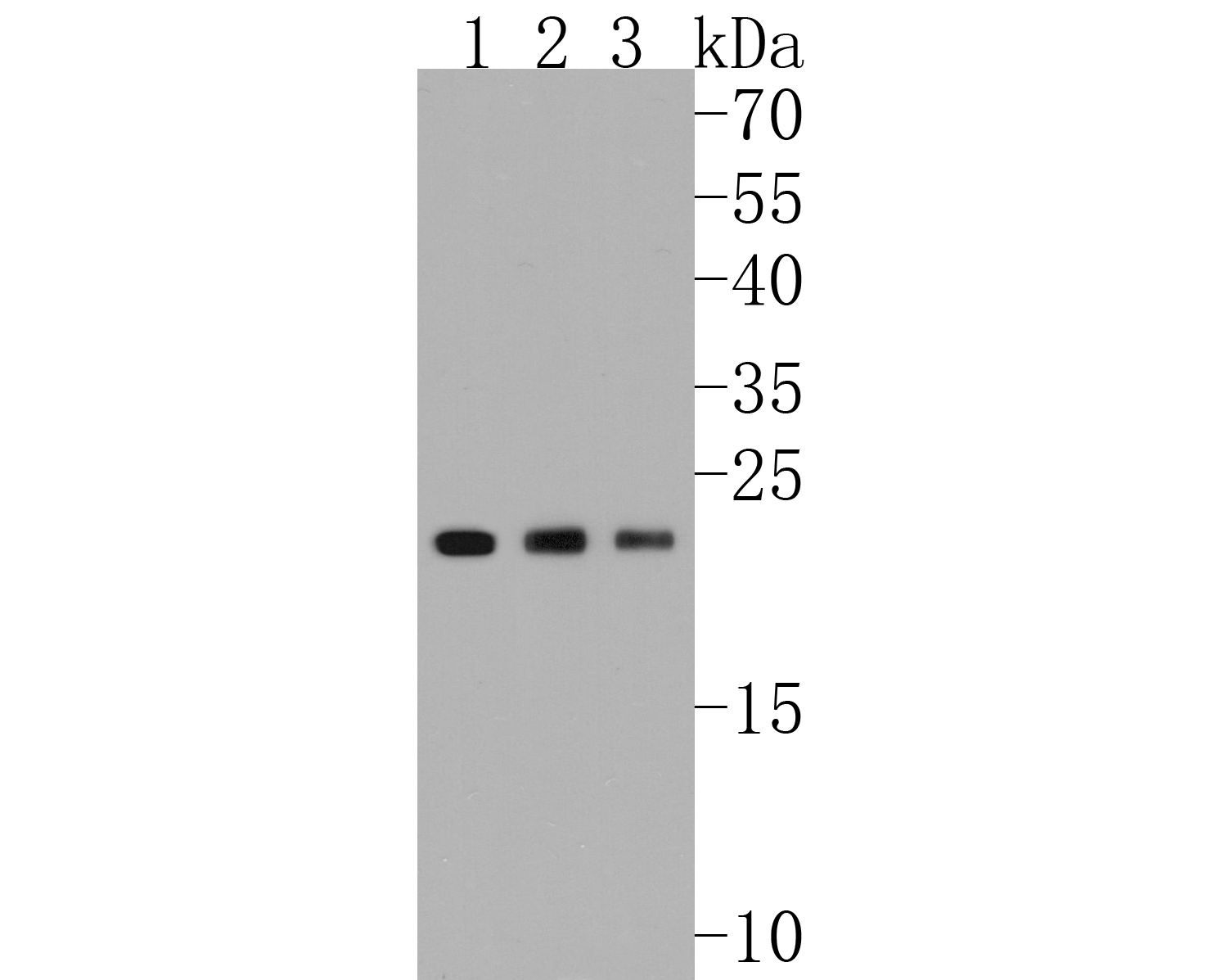 Western blot analysis of PARK7/DJ1 on different lysates. Proteins were transferred to a PVDF membrane and blocked with 5% BSA in PBS for 1 hour at room temperature. The primary antibody (ET1611-45, 1/500) was used in 5% BSA at room temperature for 2 hours. Goat Anti-Rabbit IgG - HRP Secondary Antibody (HA1001) at 1:5,000 dilution was used for 1 hour at room temperature.<br />  Positive control: <br />  Lane 1: Hela cell lysate<br />  Lane 2: Jurkat cell lysate<br />  Lane 3: NIH/3T3 cell lysate