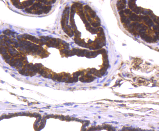 Immunohistochemical analysis of paraffin-embedded mouse prostate tissue using anti-PARK7/DJ1 antibody. The section was pre-treated using heat mediated antigen retrieval with Tris-EDTA buffer (pH 8.0-8.4) for 20 minutes.The tissues were blocked in 5% BSA for 30 minutes at room temperature, washed with ddH2O and PBS, and then probed with the primary antibody (ET1611-45, 1/50) for 30 minutes at room temperature. The detection was performed using an HRP conjugated compact polymer system. DAB was used as the chromogen. Tissues were counterstained with hematoxylin and mounted with DPX.
