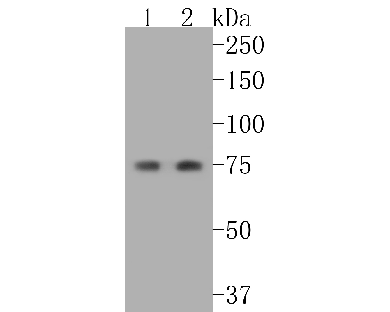 Western blot analysis of Cytokeratin 1 on different lysates using anti-Cytokeratin 1 antibody at 1/1,000 dilution.<br /> Positive control: <br /> Lane 1: 293T <br /> Lane 2: Hela
