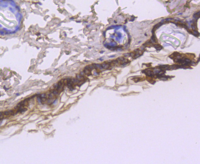Immunohistochemical analysis of paraffin-embedded mouse skin tissue using anti-Cytokeratin 1 antibody. Counter stained with hematoxylin.