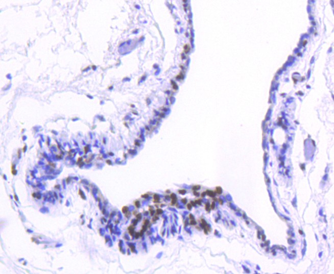 Immunohistochemical analysis of paraffin-embedded human breast carcinoma tissue using anti-Histone H2B(acetyl K20) antibody. Counter stained with hematoxylin.