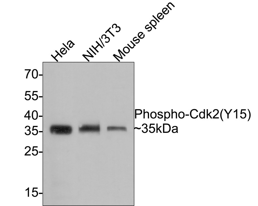Western blot analysis of Phospho-Cdk2(Y15) on different lysates using anti-Phospho-Cdk2(Y15) antibody at 1/1,000 dilution.<br /> Positive control: <br />  Lane 1: Hela <br />  Lane 2: Mouse spleen <br />  Lane 3: NIH/3T3